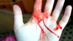 фото руки в крови фото